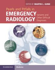 Cover Pearls and Pitfalls in Emergency Radiology