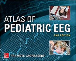 Cover Atlas of Pediatric EEG