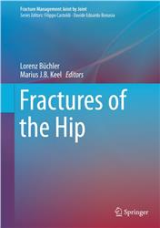 Cover Fractures of the Hip
