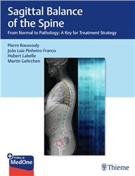 Cover Sagittal Balance of the Spine