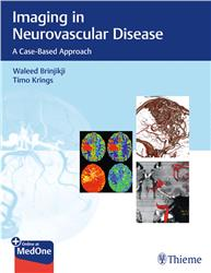 Cover Imaging in Neurovascular Disease