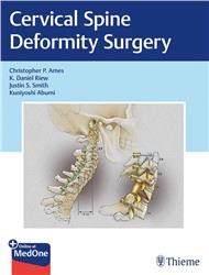 Cover Cervical Spine Deformity Surgery