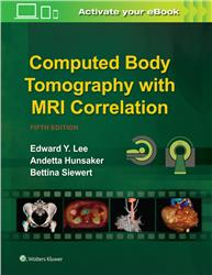 Cover Computed Body Tomography with MRI Correlation