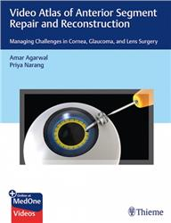 Cover Video Atlas of Anterior Segment Repair and Reconstruction: