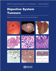 Cover WHO Classification of Tumours: Digestive System Tumous
