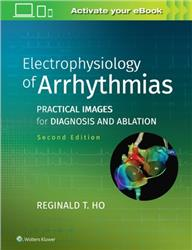 Cover Electrophysiology of Arrhythmias