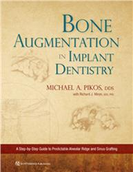 Cover Bone Augmentation in Implant Dentistry