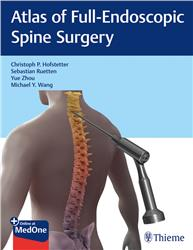Cover Atlas of Full-Endoscopic Spine Surgery