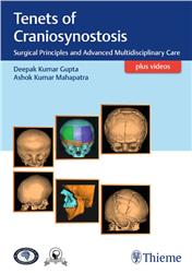 Cover Tenets of Craniosynostosis