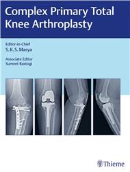 Cover Complex Primary Total Knee Arthroplasty