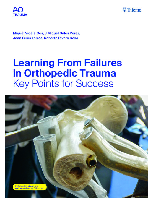AO Learning from Failures in Orthopedic Trauma