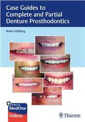 Cover Case Guides to Complete and Partial Denture Prosthodontics