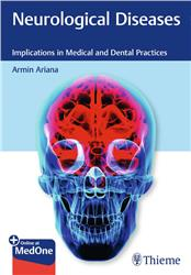 Cover Neurological Diseases
