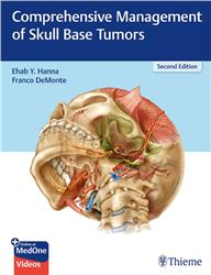 Cover Comprehensive Management of Skull Base Tumors