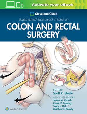 Cleveland Clinic Illustrated Tips and Tricks in Colon and Rectal Surgery