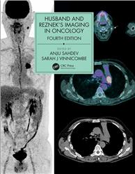 Cover Husband and Reznek's Imaging in Oncology