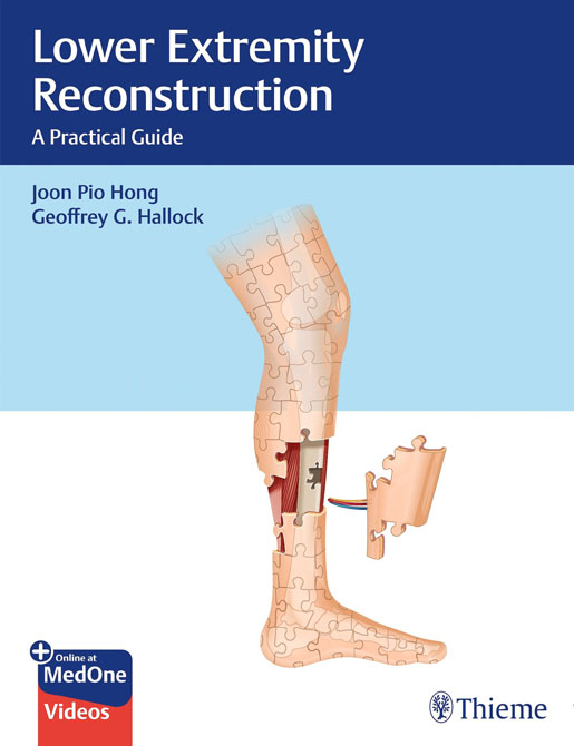Lower Extremity Reconstruction