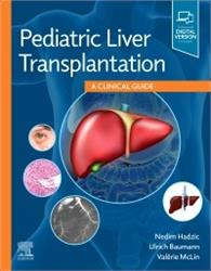Cover Pediatric Liver Transplantation: A Clinical Guide