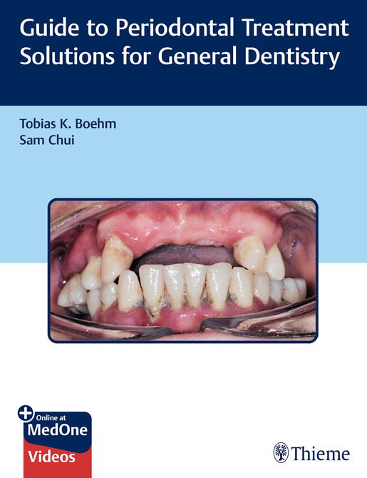 Guide to Periodontal Treatment Solutions for General Dentistry