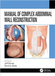 Cover Manual of Complex Abdominal Wall Reconstruction