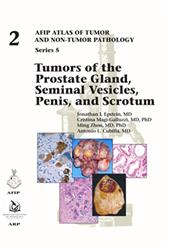 Cover Fascicle 2: Tumors of the Prostate Gland, Seminal Vesicles, Penis, and Scrotum